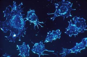 Asbestos cancer victims given new hope - cancer cells
